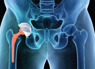 Reemplazo de la articulación de la cadera.